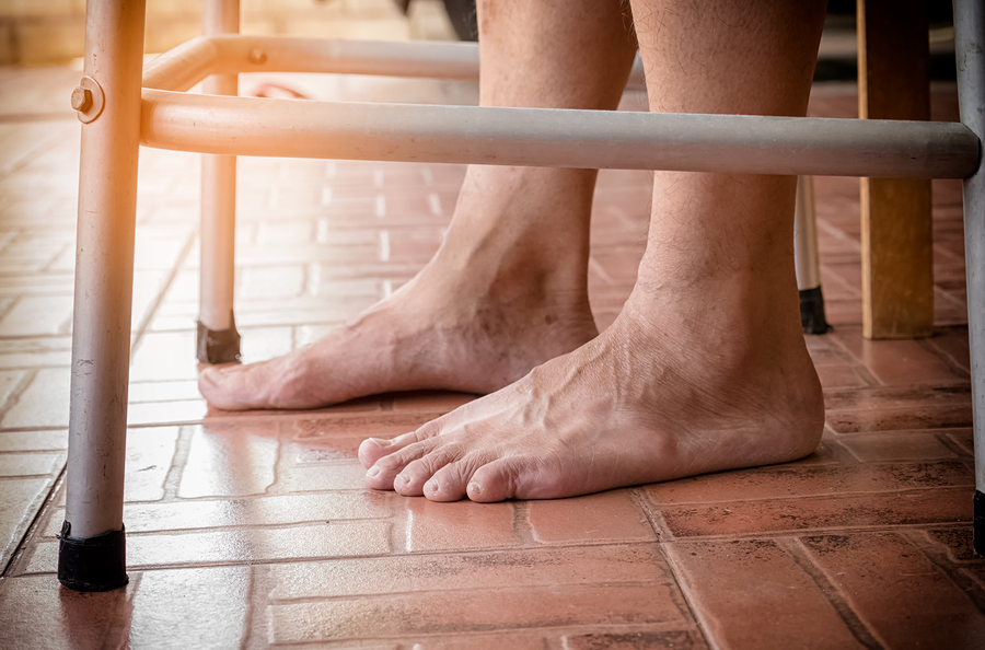 Home Care in New Hyde Park NY: Ways to Relieve Foot Pain