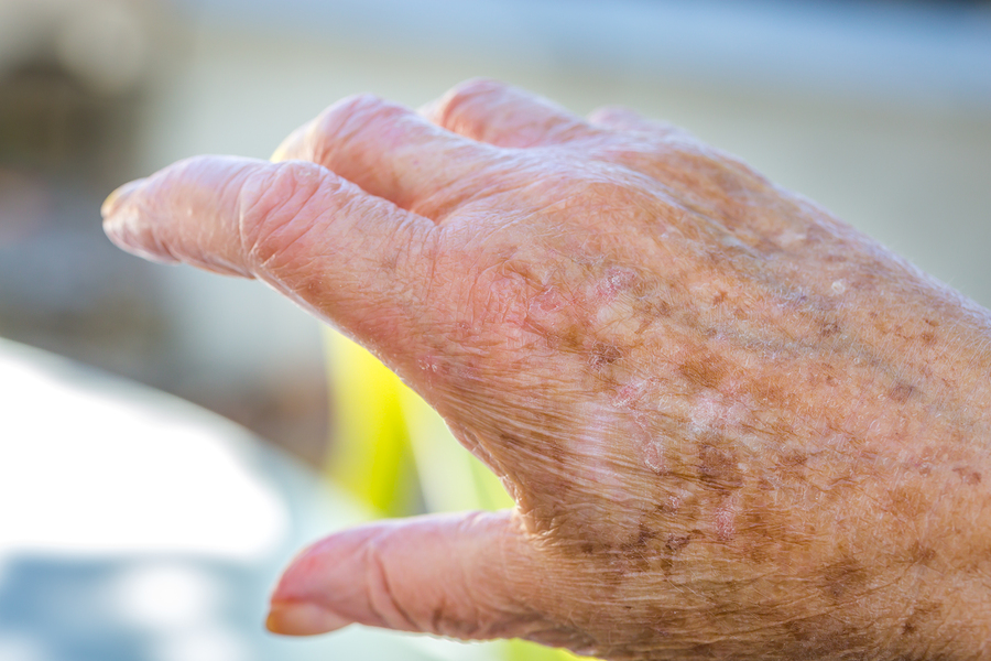 Senior Care in Jericho NY: Senior Skin Tips