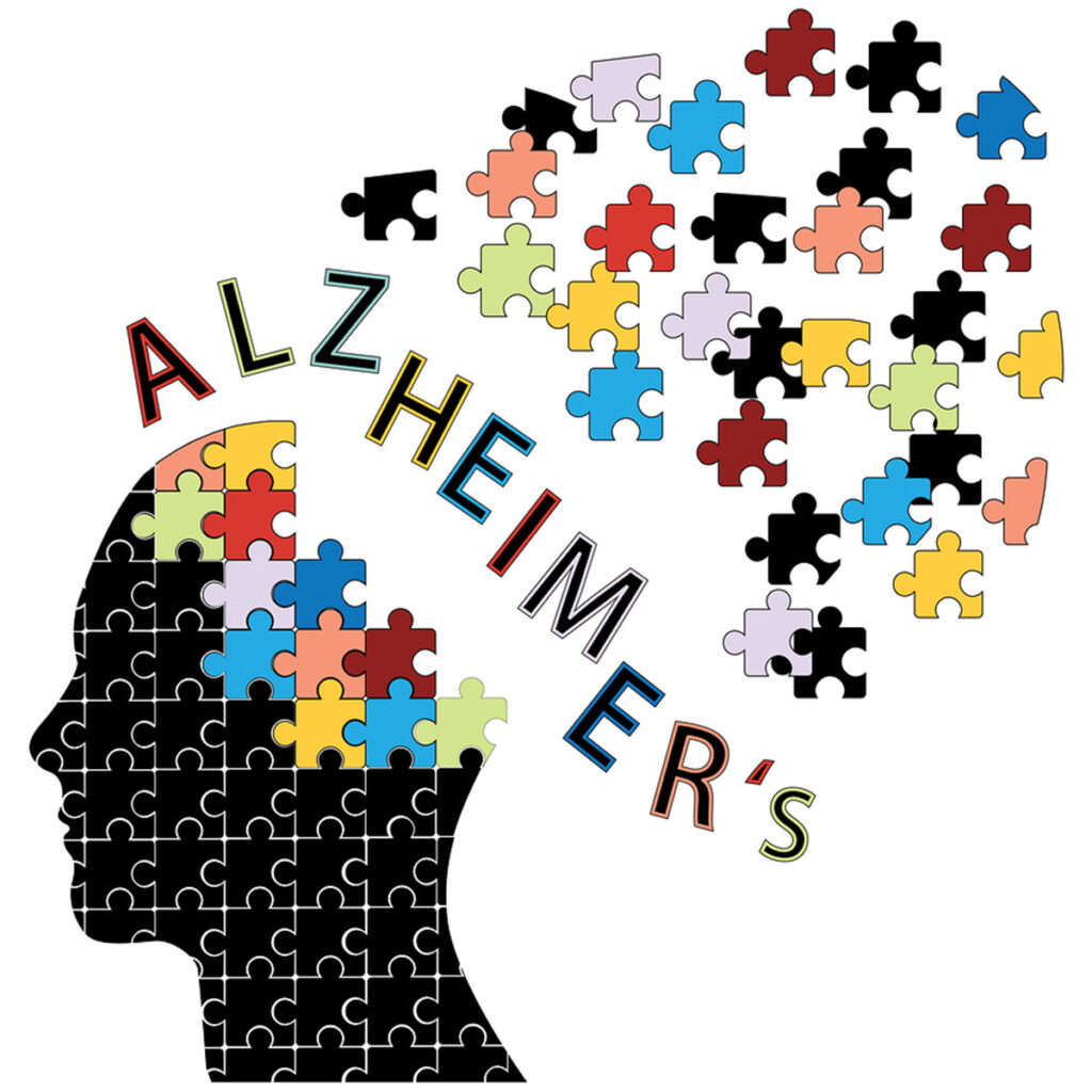 Home Care Services in Huntington NY: Alzheimer's Disease Diagnosis