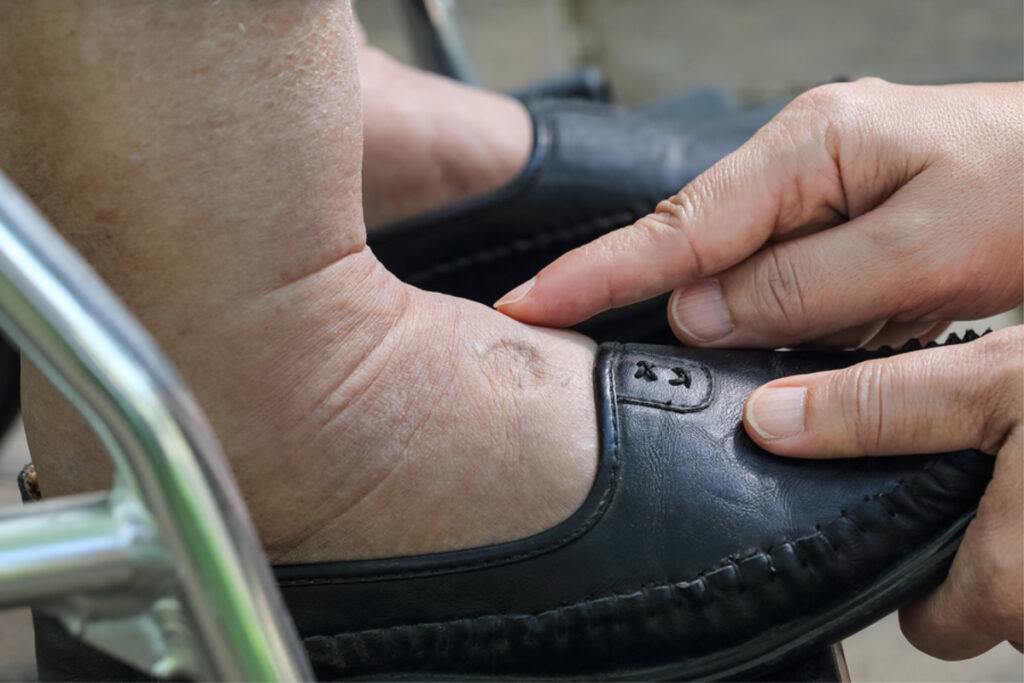 Home Care Services in Bellmore NY: Find the Right Pair of Shoes